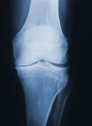 X-ray of an Arthritic Knee (not mine)