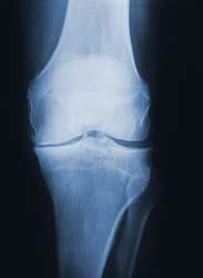 X-ray of an Arthritic Knee (not mine)